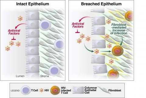Image of Intanct & Breached Epithelium